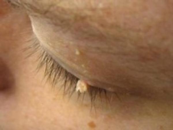 skin tag eyelids