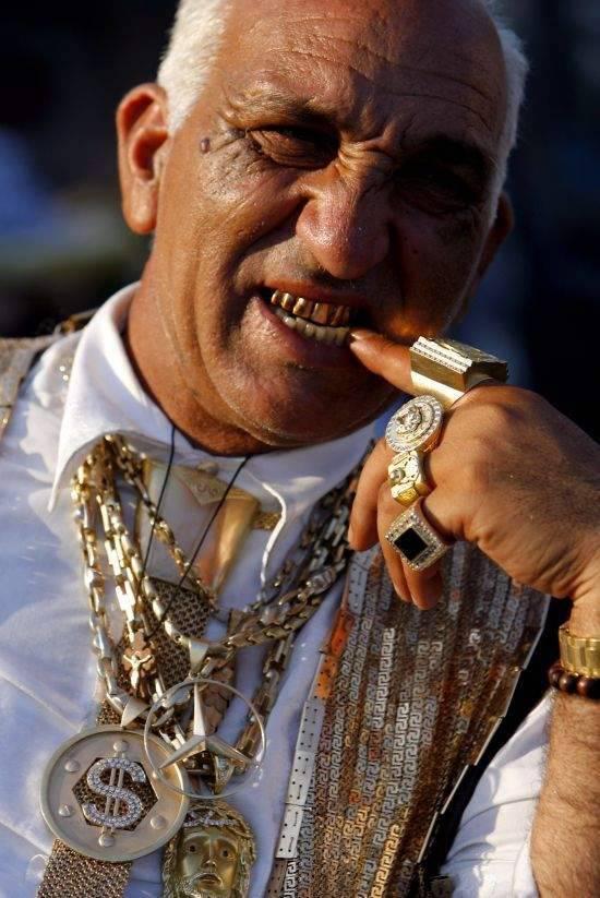 Biżuteria na zębach 44